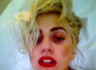 lady-gaga-black-eye-twitter